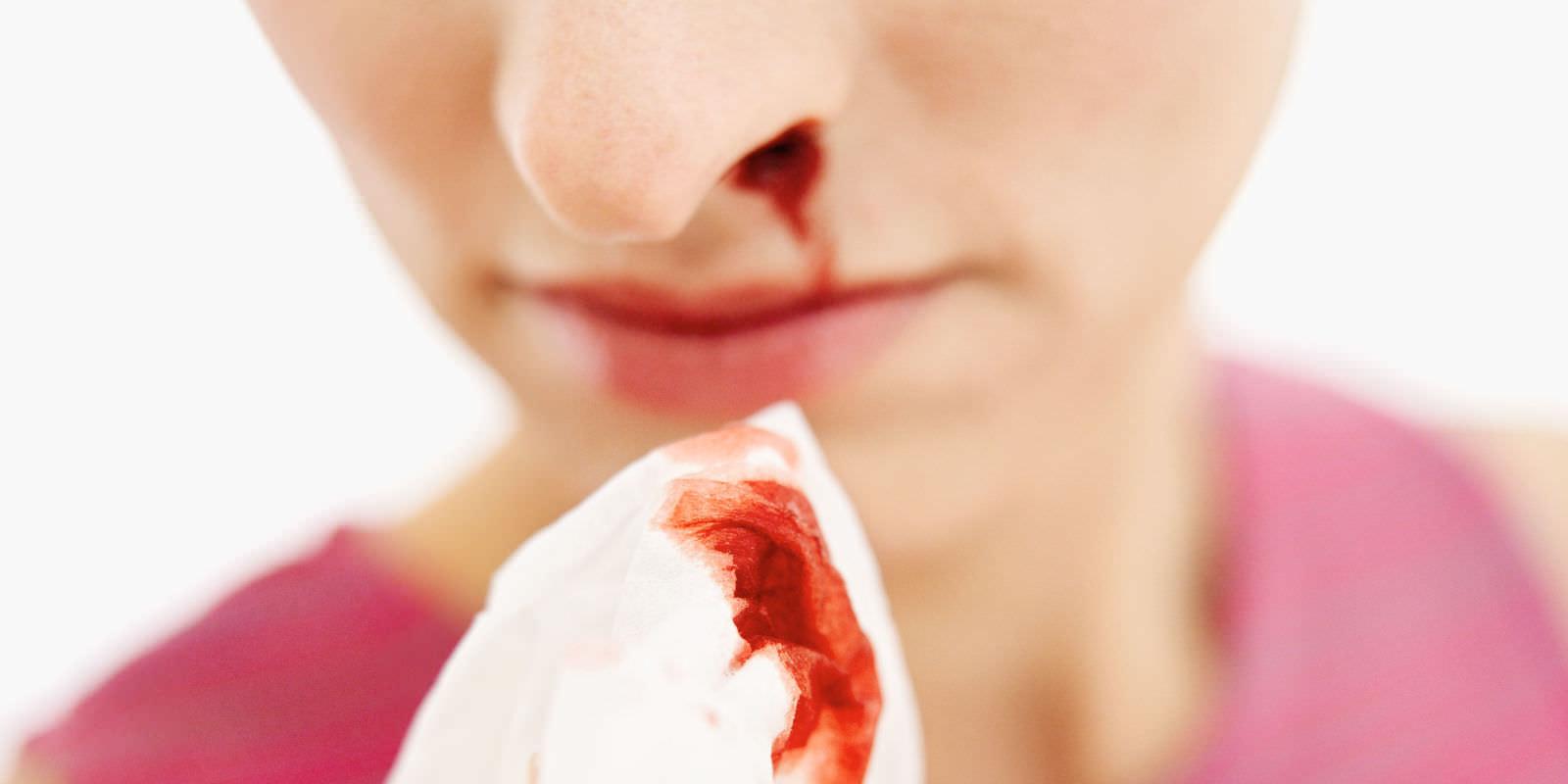 prichini-za-krvavenje-od-nosot